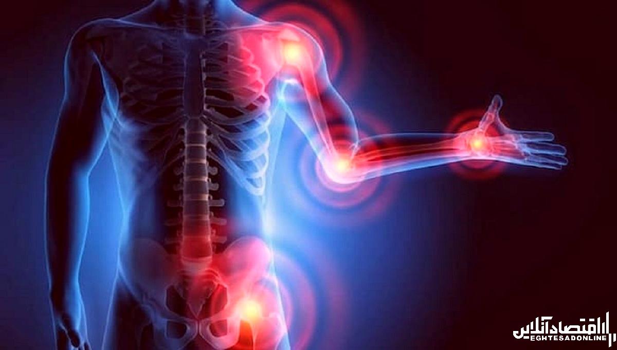 درد مفصل آرتروز