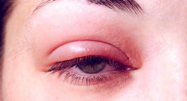Stye-and-Chalazion-عفونت چشم