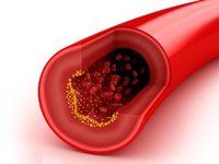 چگونه چربی خون را به سرعت کاهش دهیم؟