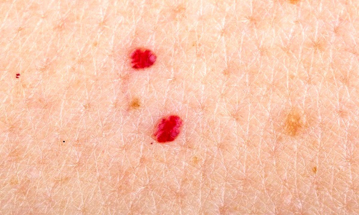 لکههای قرمز کوچک روی پوست و دلایل بروز آنها