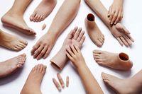 پروتز سیلیکونی (انگشتان) دست و پا: عامل زیبایی و اعتماد به نفس