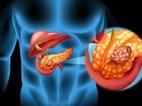 جلوگیری از پیشرفت سرطان لوزالمعده با یک روش درمانی جدید