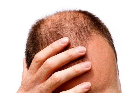 امیدی جدید برای درمان ریزش مو