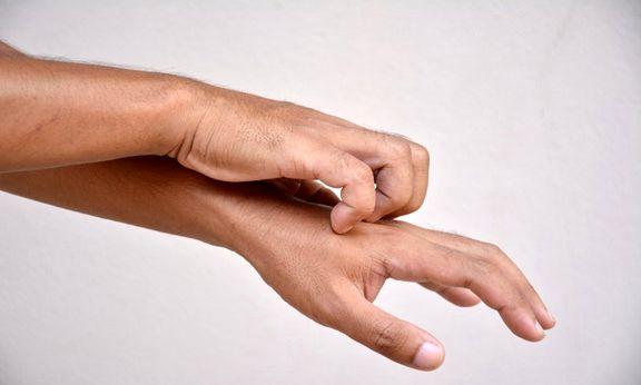 10دلیل خارش شدید پوست