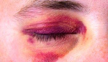 رنگهای کبودی به چه معنا هستند؟