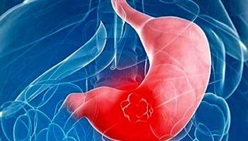 تغذیه برای درمان علائم گاستریت