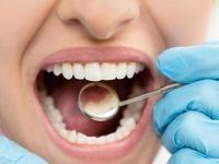 عمر مفید ایمپلنتهای دندانی ۱۰سال است
