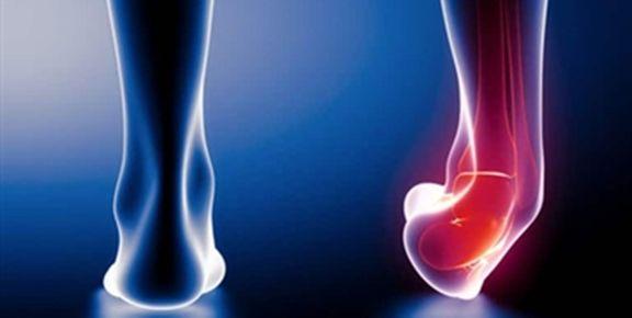 نکاتی که در مورد پیچخوردگی مچ پا باید بدانید