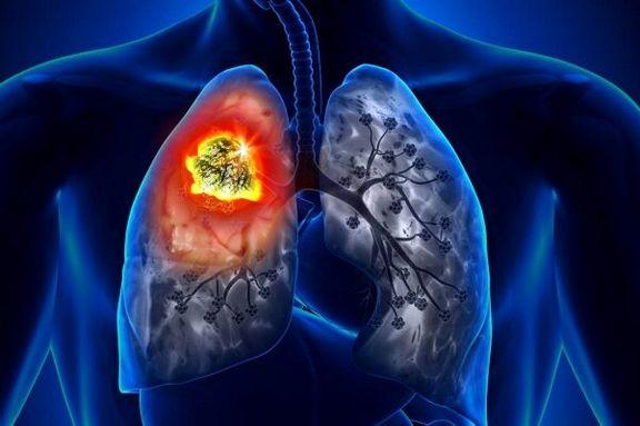 سیستم ایمنی معیوب منجر به سرطان ریه میشود