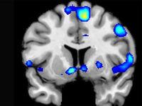 ارتباط ضربه به سر و زوال عقل در سنین بالاتر