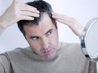 راههای درمان ریزش مو