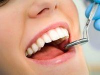 رابطه «دندان» با بیماریهای خطرناک