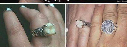 حلقه ازدواجی از جنس دندان +عکس
