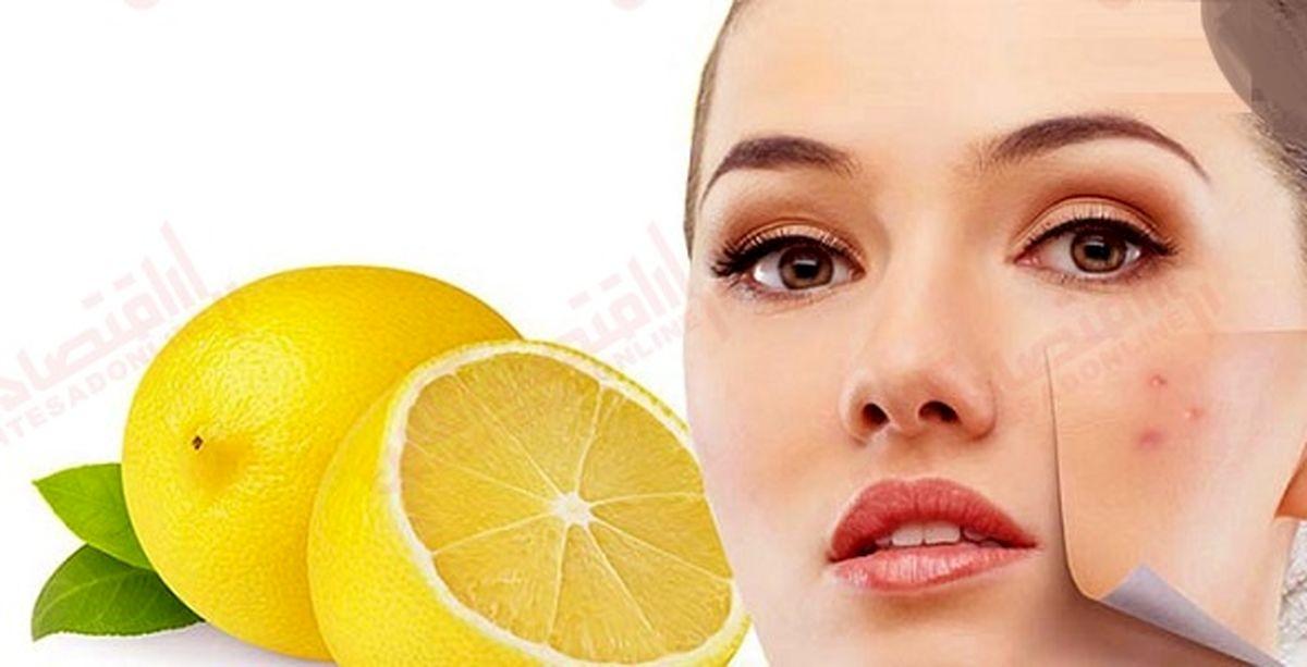 آیا لیمو جوش و آکنه را از بین میبرد؟