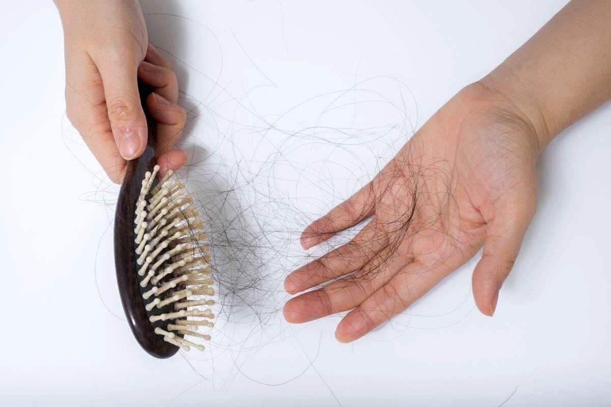 رایجترین علل علمی ریزش مو