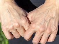 ۷دلیل پیر شدن دستها