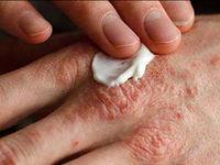 آلودگی هوا چه آسیبی به «پوست» میزند؟