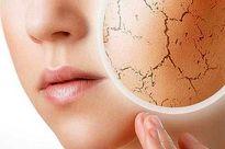 ۵خوردنی مفید برای رفع خشکی پوست