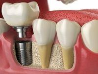 خطرات کوتاه و بلند مدت ایمپلنتهای دندان
