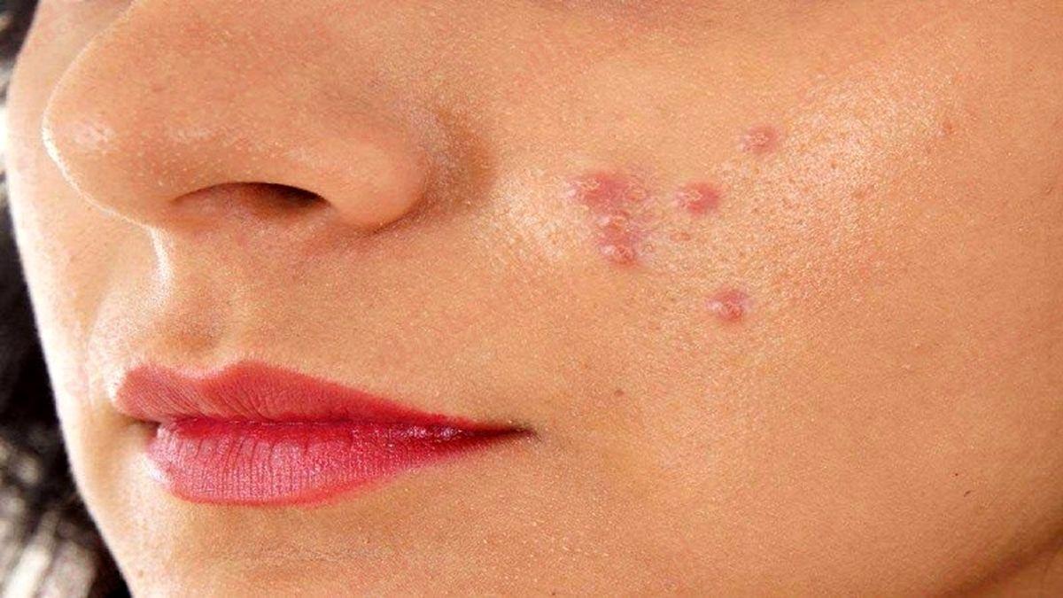 چه عواملی باعث چربی پوست میشود؟