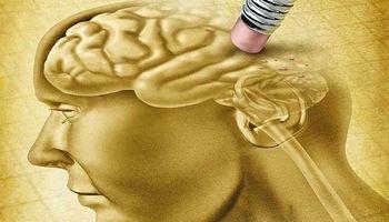 علائم هشداردهنده آلزایمر