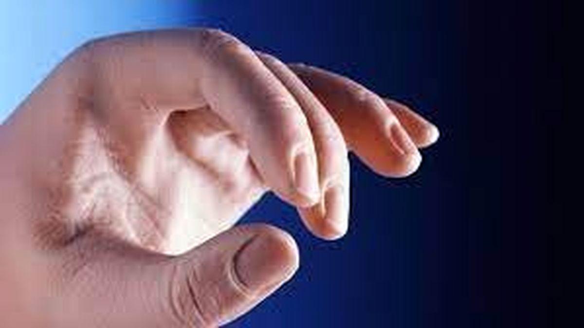 کنترل علائم سرطان پوست در ناخن ها