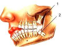 دندان عقل را بکشیم یا نکشیم؟