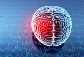 اندازهگیری هوش انسان از روی تصاویر مغز