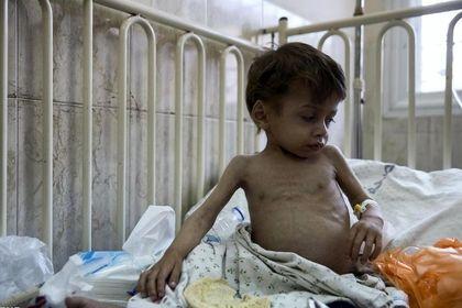 سوء تغذیه کودکان غزه +تصاویر