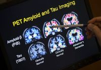 ادعای کشف دارویی جدید برای درمان آلزایمر