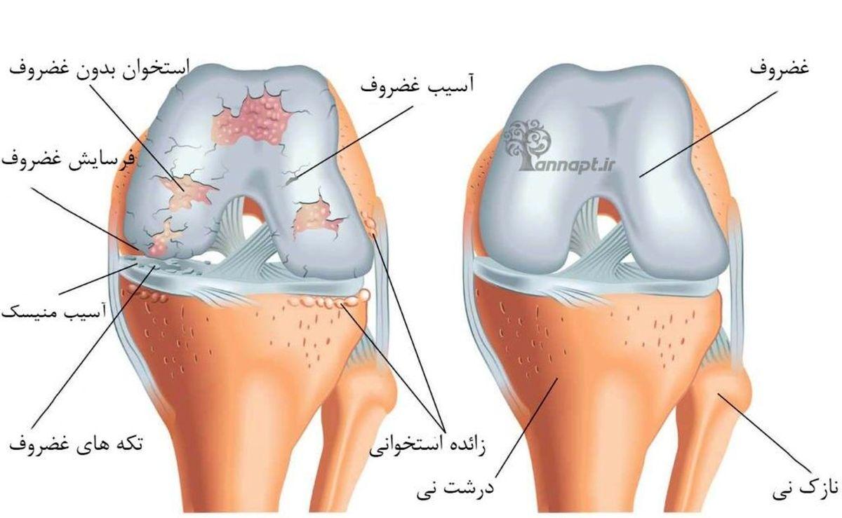 افزایش وزن و کم تحرکی آرتروز زانو را تسریع می کند