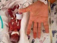 کوچکترین نوزاد دنیا را ببینید +تصاویر