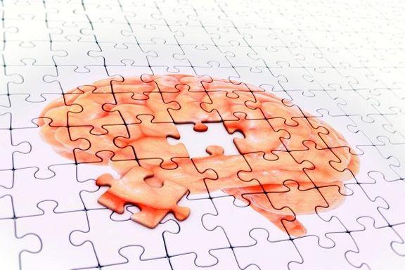 پلاکهای مغزی قبل از سایر علائم آلزایمر بروز میکنند
