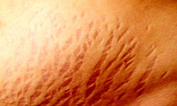 کرم دستساز برای ترکهای پوست!