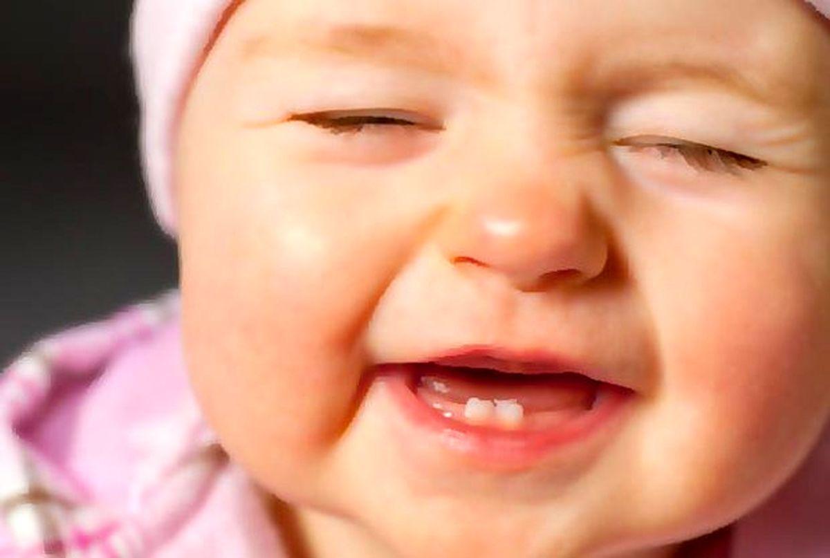 پوسیدگی دندان کودکان راجدی بگیرید