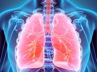 20 عادت خطرناکی که ریه را نابود میکند