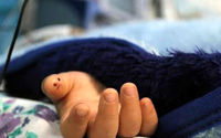 مرگ به دلیل تجویز غلط دارو! +عکس