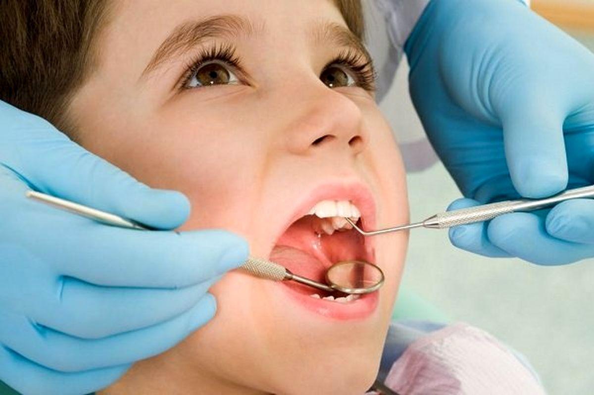 چند عامل مهم پوسیدگی دندان را بشناسید