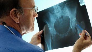 گامهایی برای افزایش تراکم استخوان