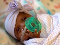 کوچکترین نوزاد دختر دنیا به خانه رفت +عکس
