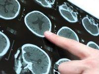 آغاز غربالگری سکتههای قلبی و مغزی سنین بالای ۴۰ سال