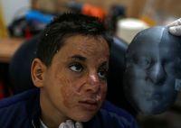 ماسک سه بعدی برای قربانیان سوختگی صورت +عکس