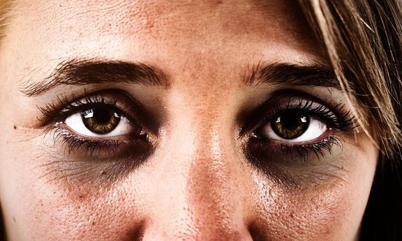 حلقههای تیره زیر چشم و روش هایی طبیعی برای بهبود آن