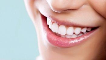 برای سفید کردن دندانها چه کنیم؟