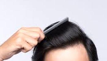 ۵غذا که برای رشد مو مفید است