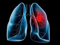 بیماری انسداد ریوی عامل افزایش خطر سرطان ریه