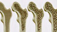 عوامل خطر برای پوکی استخوان
