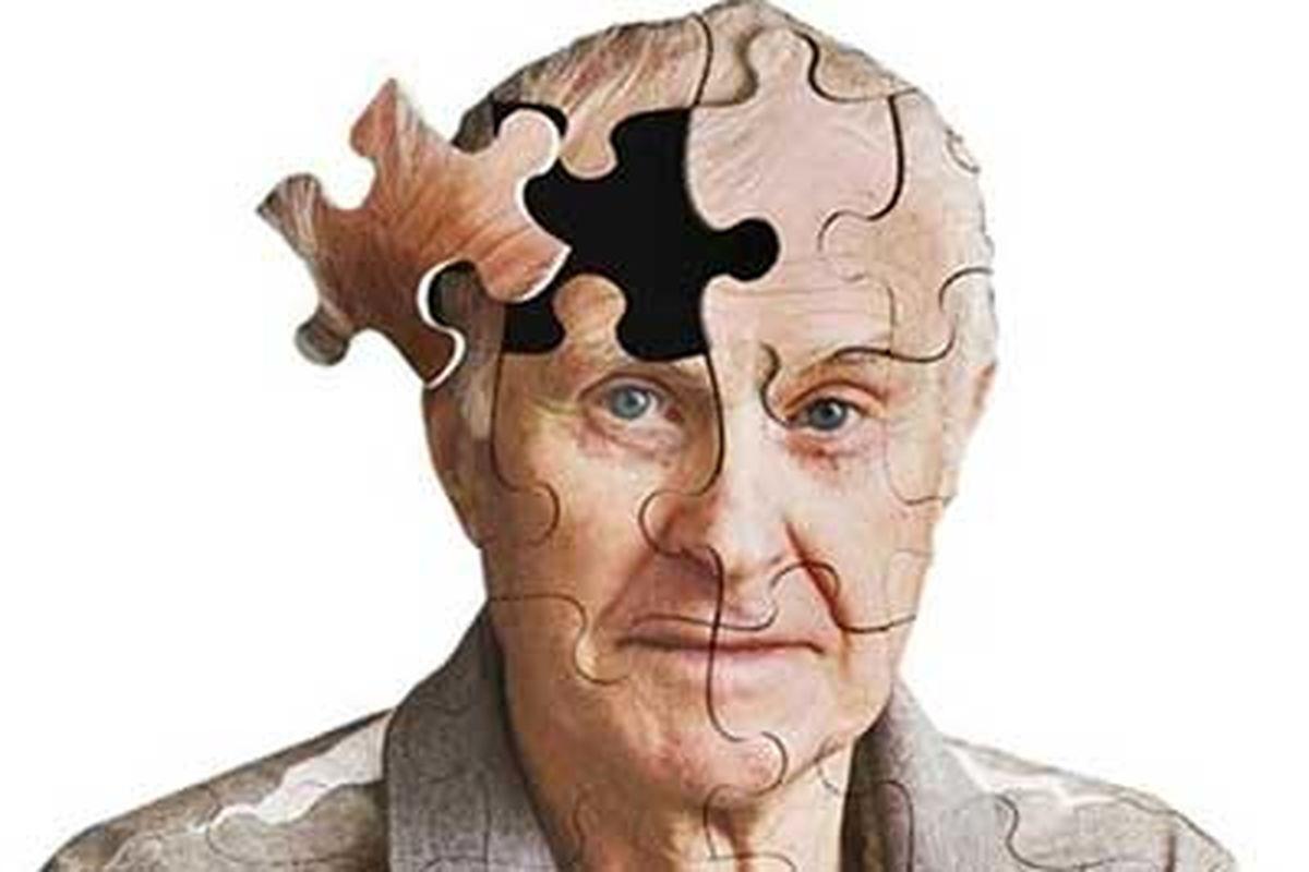 اختلال بیش فعالی فرزندان و خطر زوال عقل برای خویشاوندان درجه دوم