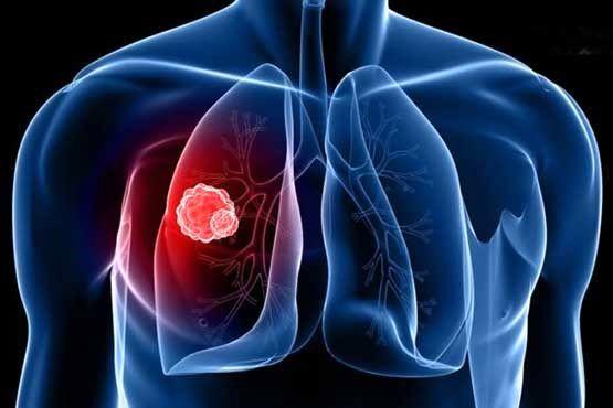 عوامل موثر در ابتلا به سرطان