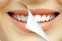 نقش مواد معدنی در بهداشت دهان و دندان